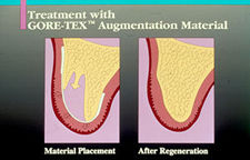 Gum Surgery - Bone Regeneration