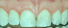 Gum Surgery - Esthetic (Cosmetic) Crown Lengthening
